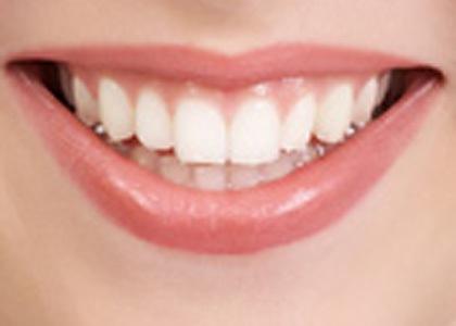أشعة x السينية و صحة الأسنان!! %D8%B7%D8%B1%D9%82-%D9%88%D9%88%D8%B5%D9%81%D8%A7%D8%AA-%D8%B7%D8%A8%D9%8A%D8%B9%D9%8A%D8%A9-%D9%84%D8%AA%D9%86%D8%B8%D9%8A%D9%81-%D9%88%D8%AA%D8%A8%D9%8A%D8%B6-%D8%A7%D9%84%D8%A3%D8%B3%D9%86%D8%A7%D9%86