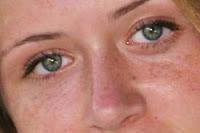 لازالة الكلف والبقع السوداء من الوجه(ماسك) Basma