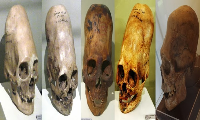 DNA ANALYSIS OF PARACAS ELONGATED SKULL RELEASED – WITH INCREDIBLE RESULTS Resized-PXVNL