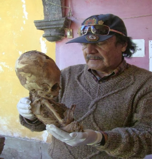 DNA ANALYSIS OF PARACAS ELONGATED SKULL RELEASED – WITH INCREDIBLE RESULTS 11Resized-KA623