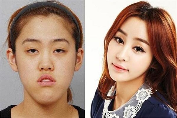Звезды до и после Korean-girl-plastic-surgery-magic-01