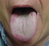 إعرف مرضك من رائحة فمك ،لسانك ،بولك .... Tongue