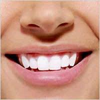 طريقة للحفاظ على أسنان بيضاء  2083701247417161