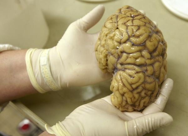Researchers locate 'Sixth Sense' within the brain Brain