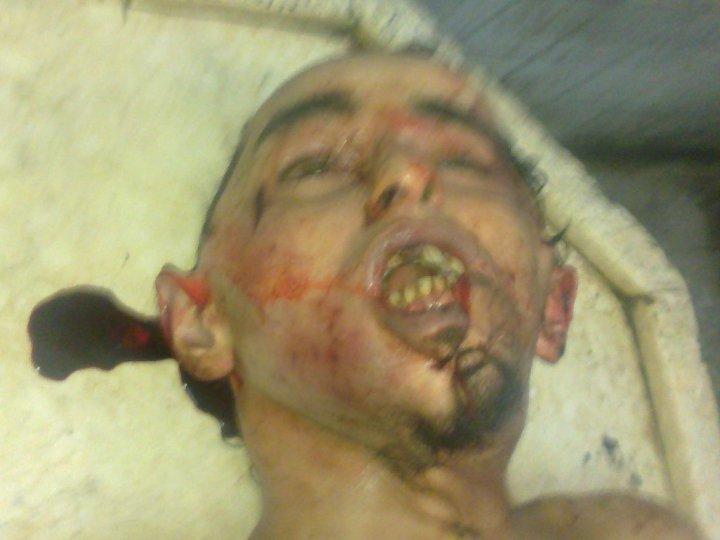 بالصور : خالد.. ضحية تعذيب جديده فى قسم شرطة بالاسكندرية حتى الموت 31246_1321216598055_1460018059_30741769_5139451_n