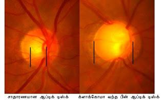 கண் - Anatomy  Glaucoma1