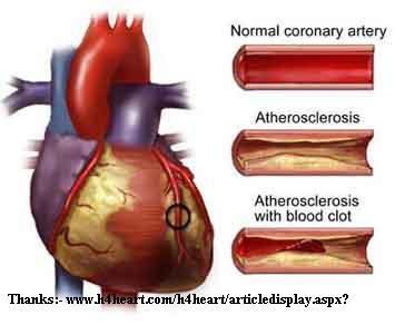 வாழ்வை எரிப்பதில் நாட்டமோ? – புகைத்தல் - Smoking Atherosclerosis