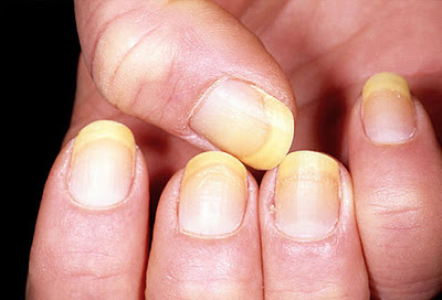 YELLOW NAILS? - Always check other nail features of the hand, like: the cuticles & lunula! 3