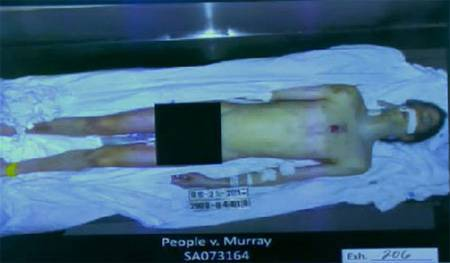 Antes / Despues Michael-jackson-dead-body__oPt