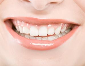 بالصور..أكلات تدمر صحة و بياض أسنانك!!!  298x232_LB_teeth_grtwhit_ST