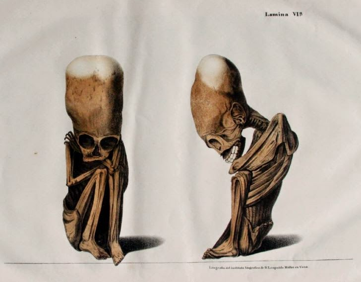 The Forbidden History of the Elongated Skulls  Capture3