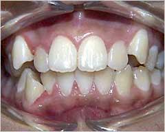 مشكلة بروز الأسنان .. أسبابها وطرق علاجها 1