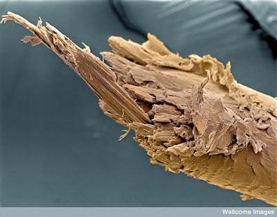 மனிதனின் அணுக்களின் முப்பரிமான படங்கள்..... Hair