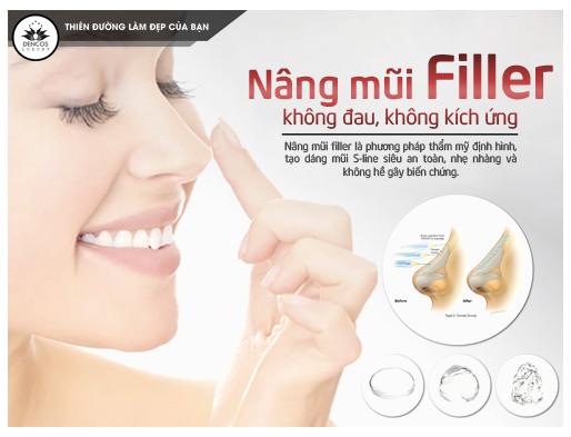 nâng mũi filler chữa mũi tẹt chỉ trong 5 phút Nang-mui-filler