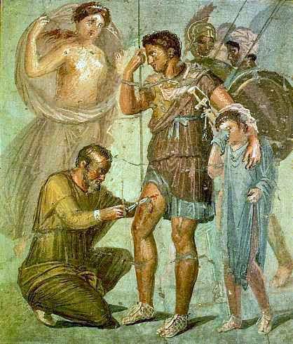 Eneas, el superviviente de la Guerra de Troya. Iapyx_removing_arrowhead_from_Aeneas