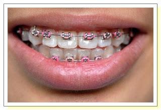مشكلة بروز الأسنان .. أسبابها وطرق علاجها 33