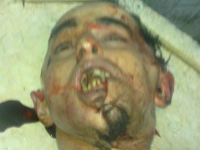 بالصور : خالد.. ضحية تعذيب جديده فى قسم شرطة بالاسكندرية حتى الموت 31246_1321212037941_1460018059_30741767_5423545_n