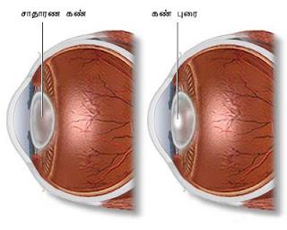 கண் - Anatomy  Cataract-1
