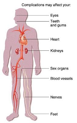 நீரிழிவு நோயாளிக்கு வரும் தொற்றும், தடுப்பு முறையும் Diabetes