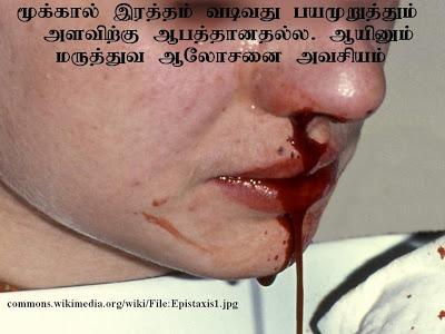 மூக்கால் இரத்தம் வடிதல் (Epistaxis) Epistaxis1