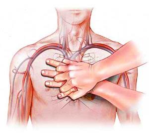 تقريري عن محاضرة عن الإنعاش القلبي الرئوي  Www_arab-x_com_6cfdea84fd