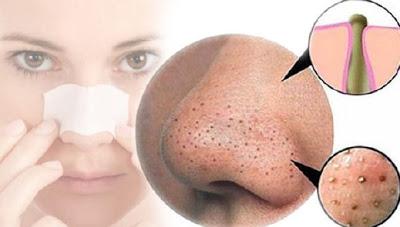 طرق سهلة لازالة الرؤوس السوداء من الوجه وعلى الانف 1