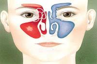 لمن يعاني من حساسية الأنف أو الجيوب T_11d79db6-4e13-40cb-ac51-312099931ba9