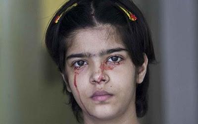 Seorang Gadis di India Keluarkan Keringat Darah Twinkle
