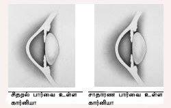 கண் - Anatomy  Astigmatism1