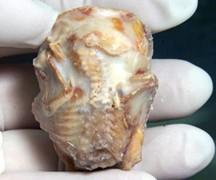 Baki okriven skamenjen fetus star 40 godina! Sb5