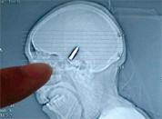 Albanian had bullet in head for 12 years 1239710562-bullet