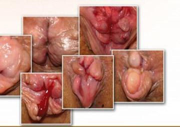 Hình ảnh bệnh trĩ ngoại chi tiết qua các thời kỳ tiến triển Hinh-anh-tri-ngoai-do-4