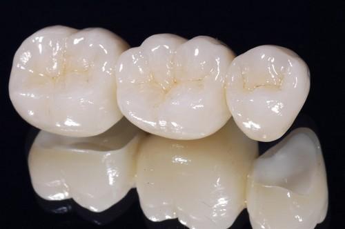 Bọc răng sứ có tác hại gì không? 10-loi-ich-giup-ban-co-nen-boc-su-hay-khong-7