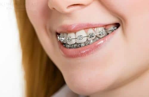 Niềng răng 3 tháng sau sẽ như thế nào? Nieng-rang-hay-boc-rang-su-1