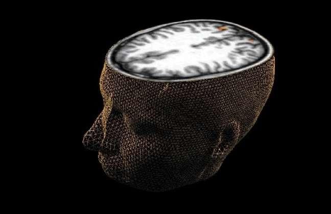 Diseñan chip que ambiciona funcionar como el cerebro Detalle6f628d91e8815bfbe50552e51da26e88