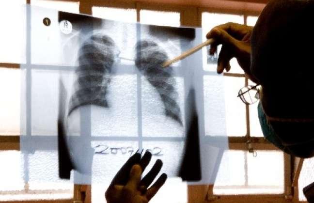 Aumentan casos de resistencia a tratamiento multifármacos contra tuberculosis Detalleb297f9b2cc25ad1fc8c2ec4f4557793d