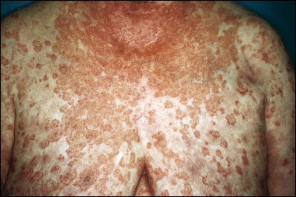 Le dépistage systèmatique du cancer est une escroquerie ? (vidéo docteur gérard Delépine) Figure7