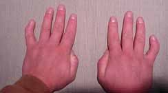 Pinky finger curvature (clinodactyly) may signal cognitive decline Clinodactyly1
