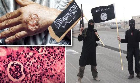 هل تكون الأمراض المميتة سببا في القضاء علي داعش؟ Islamic-State-Raqqa-flesh-eating-disease-567597