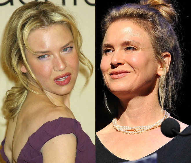 MILFs - El hilo de las maduritas - Página 6 Renee-Zellweger-Plastic-Surgery-Photos-Before-After-1
