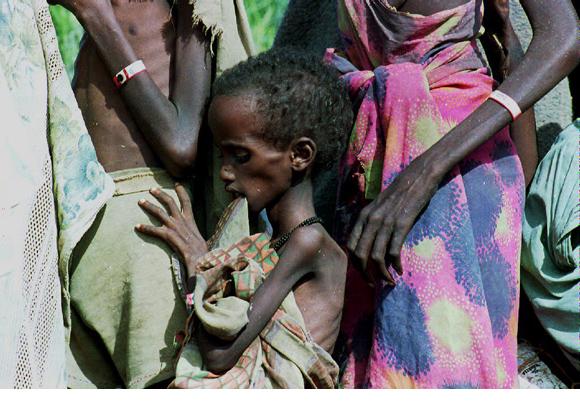 Somalija Somalia-starving