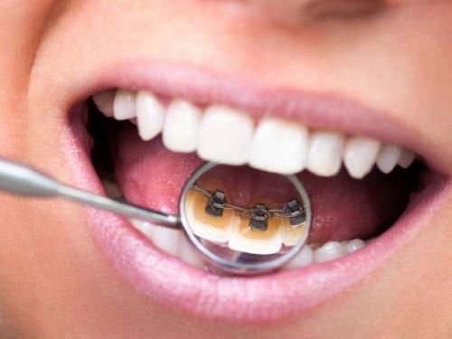 Đơn vị nha khoa niềng răng giá rẻ tại TPHCM Uu-nhuoc-diem-cua-nieng-rang-mat-trong-1