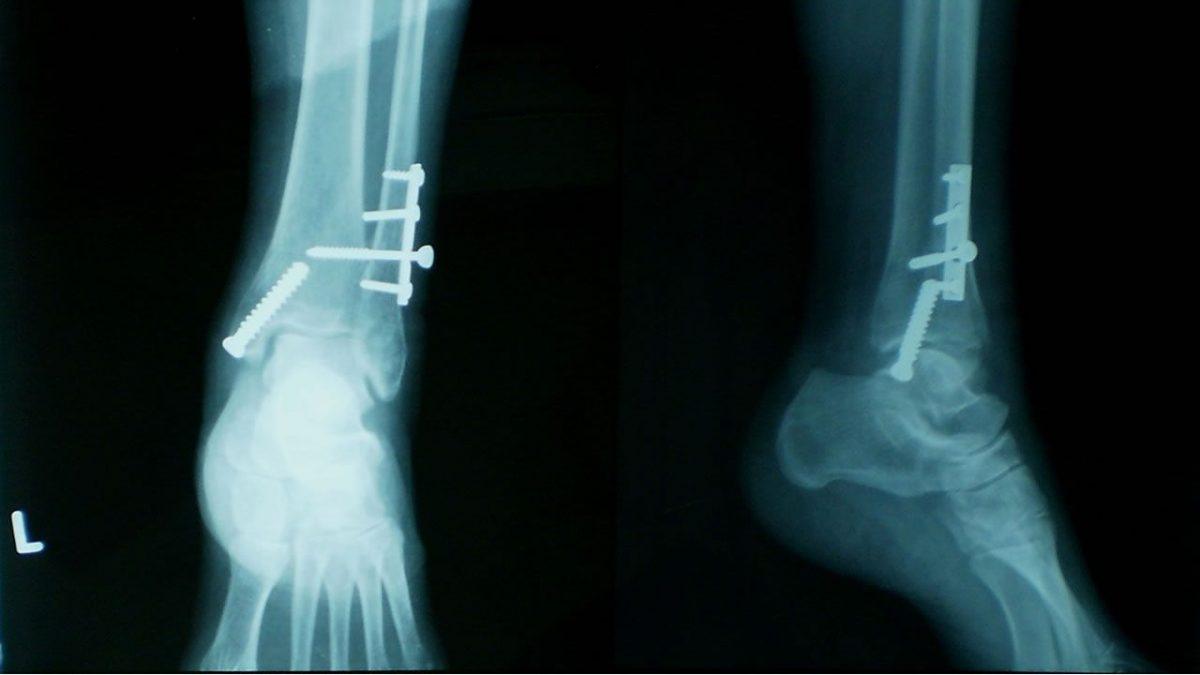 Ultimos Avances en Ciencia y Salud - Página 11 Nuevo-tipo-de-implante-cura-huesos-rotos-transformandose-en-hueso-real-portada-1200x675