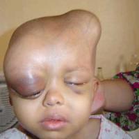 Die missgebildeten Babys von Falludscha 263533