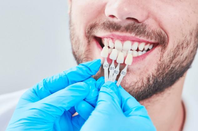 Имплантация зубов в Москве Aed1368c3e