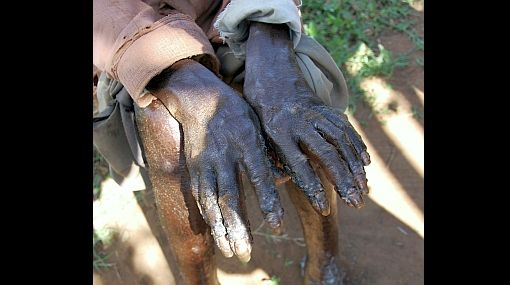 Insectos que succionan sangre causan mal del 'zombi' en Uganda  234107