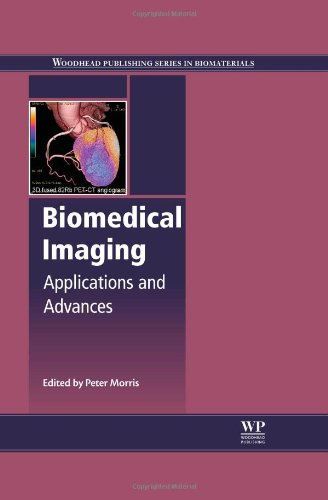 Biomedical Imaging: Applications and Advances (Woodhead Publishing Series in Biomaterials) 419l%2BJiRxHL