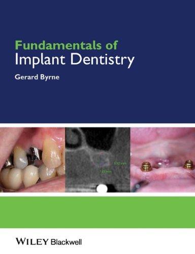 Fundamentals of Implant Dentistry 41IHsJbjhKL