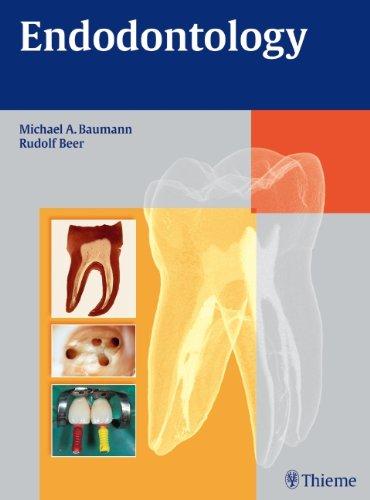 Endodontology (Color Atlas of Dental Medicine series) 41OrRLBGD4L