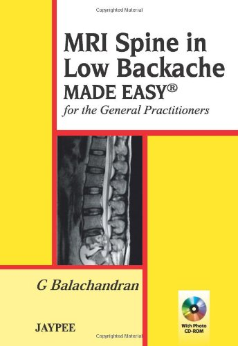 MRI Spine in Low Backache Made Easy for the General Practitioners 41U8B5ULDaL